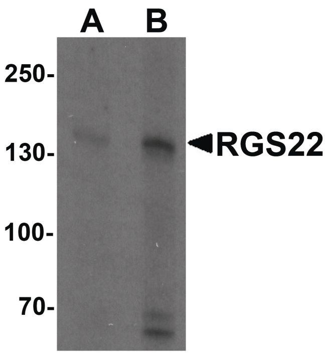 RGS22 Antibody (PA5-34426) in Western Blot