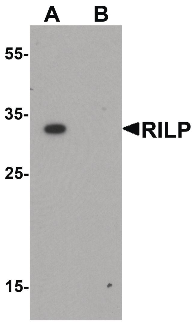 RILP Antibody (PA5-34357) in Western Blot