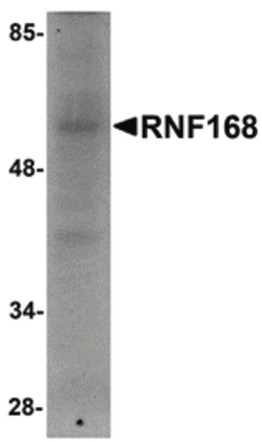 RNF168 Antibody (PA5-20738)