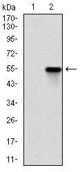 ROCK1 Antibody (MA5-17165) in Western Blot