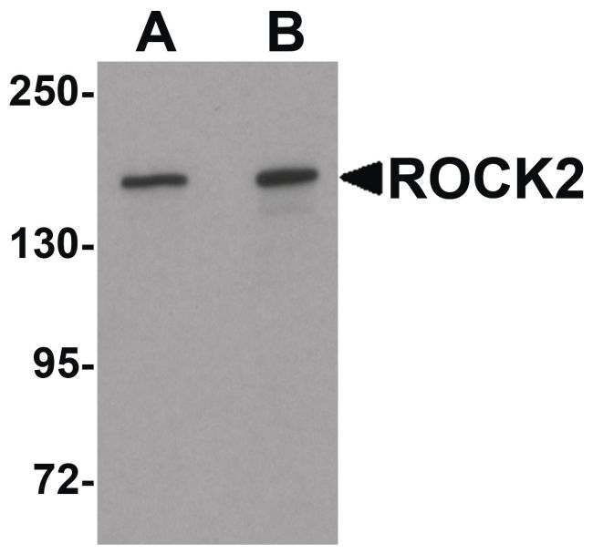ROCK2 Antibody (PA5-21131) in Western Blot