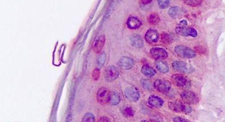 RORA Antibody (PA5-34158) in Immunohistochemistry (Paraffin)