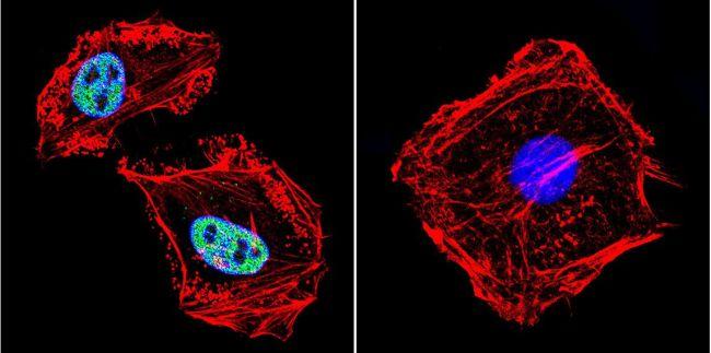 RPA2 Antibody (MA1-870) in Immunofluorescence