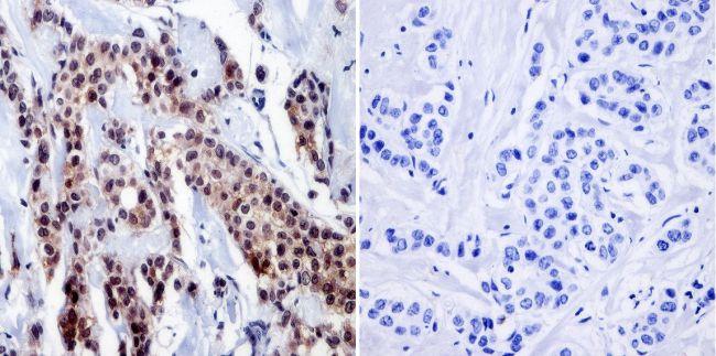 RPA2 Antibody (MA1-870) in Immunohistochemistry (Paraffin)