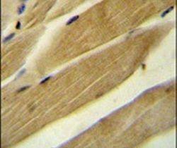 RPH3AL Antibody (PA5-24233) in Immunohistochemistry