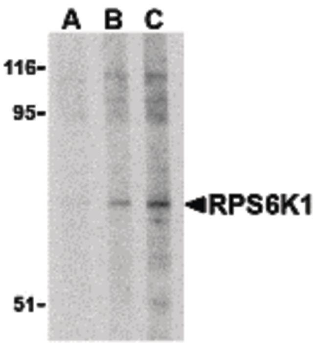 RSK1 Antibody (PA5-20134) in Western Blot