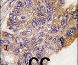 RSK1 Antibody (PA5-15135) in Immunohistochemistry
