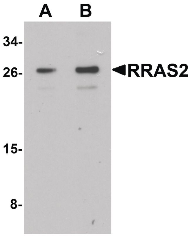 RRAS2 Antibody (PA5-34518) in Western Blot
