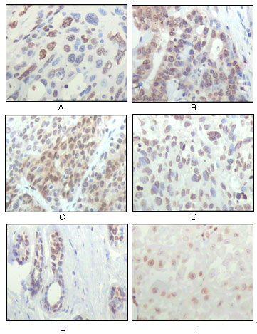 RSK1 Antibody (MA5-15341) in Immunohistochemistry
