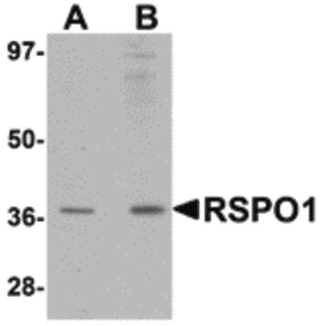 RSPO1 Antibody (PA5-20749) in Western Blot