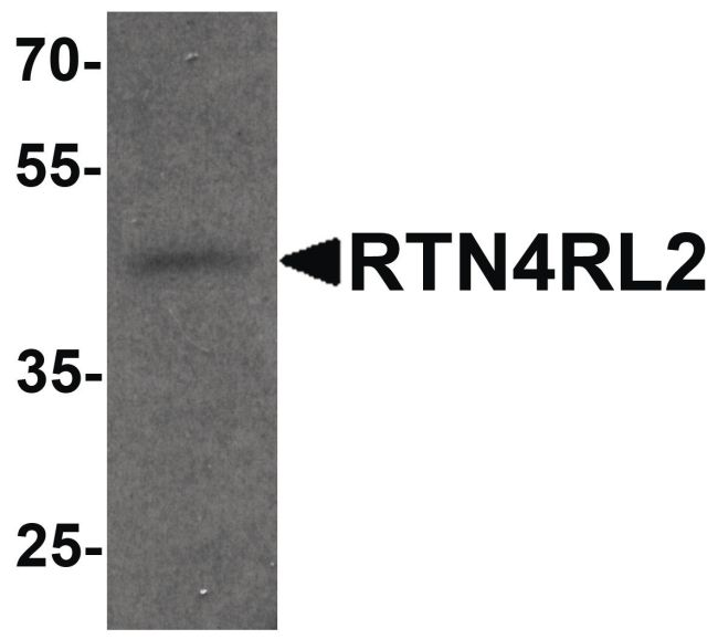 RTN4RL2 Antibody (PA5-34488) in Western Blot