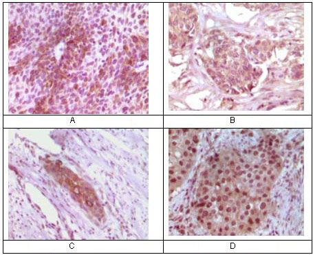 RAB25 Antibody (MA5-15267)
