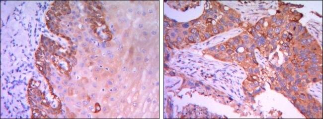 RAB25 Antibody (MA5-15587) in Immunohistochemistry