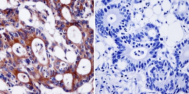 Pan Ras Antibody (MA1-012X) in Immunohistochemistry