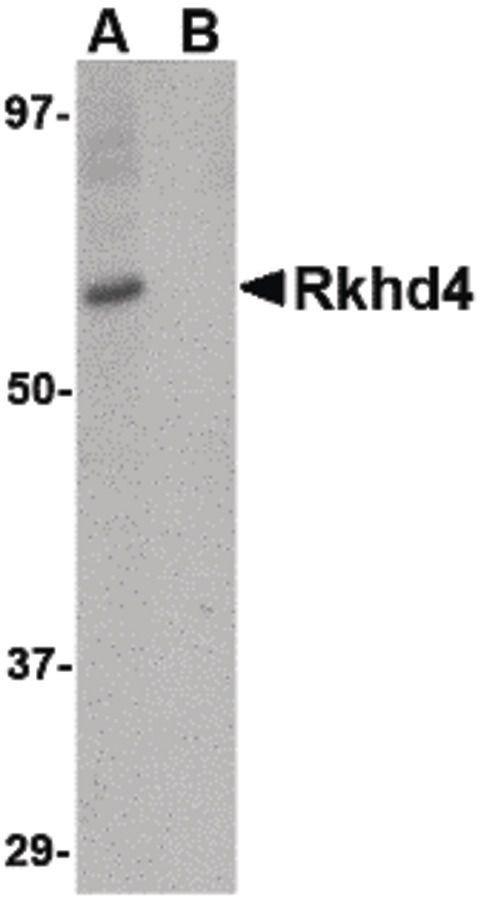 RKHD4 Antibody (PA5-20639) in Western Blot
