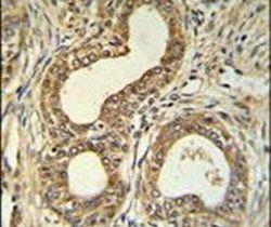 ROBO4 Antibody (PA5-25023)