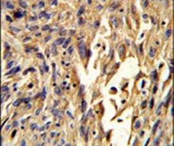 S100A10 Antibody (PA5-26100) in Immunohistochemistry