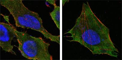 S100A10 Antibody (MA5-15326)