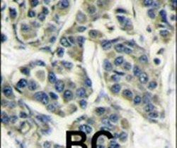 p70 S6 Kinase Antibody (PA5-12722) in Immunohistochemistry