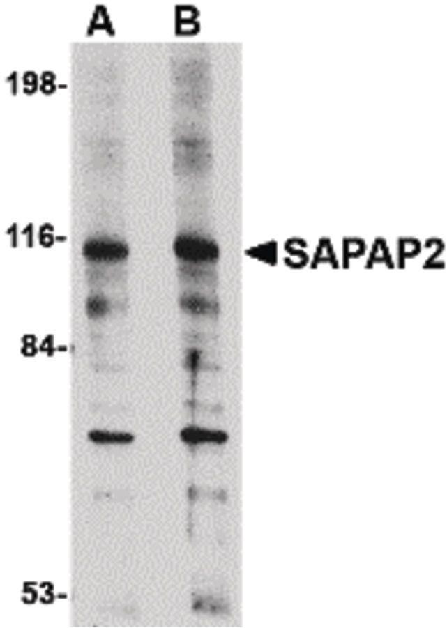 SAPAP2 Antibody (PA5-20541) in Western Blot