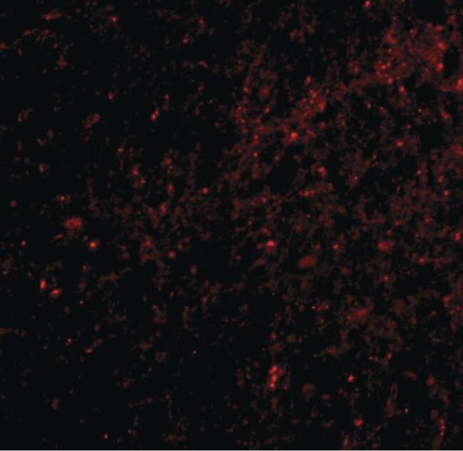 SAPAP3 Antibody (PA5-20465) in Immunofluorescence
