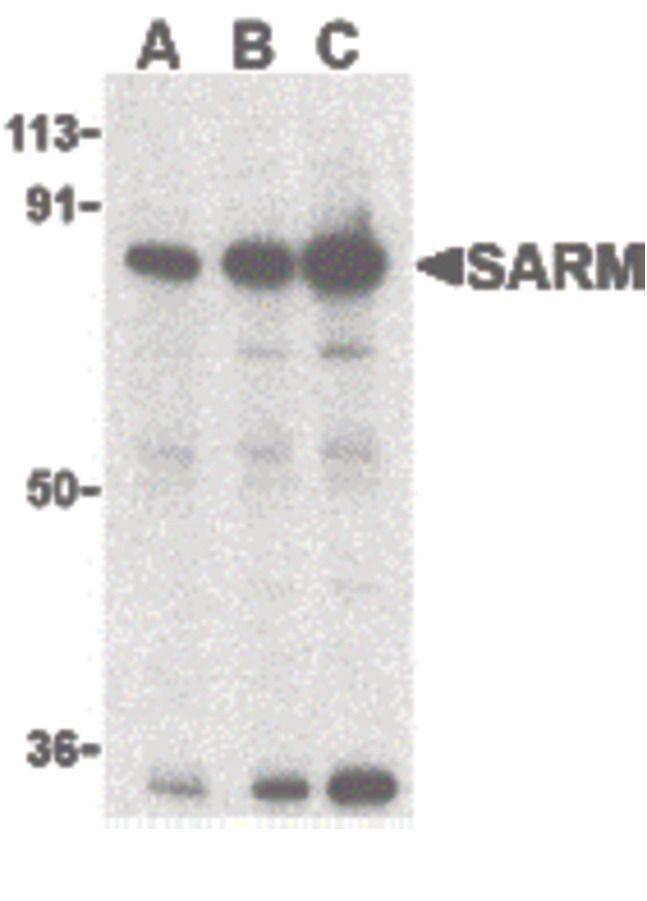 SARM Antibody (PA5-20059) in Western Blot