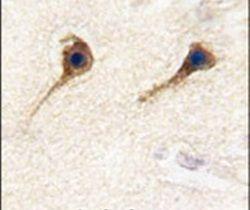 SARS2 Antibody (PA5-14984)