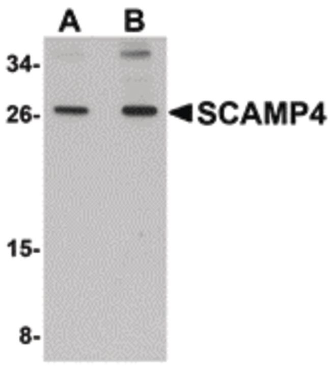 SCAMP4 Antibody (PA5-20787) in Western Blot