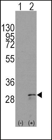 SCF Antibody (PA5-11563) in Western Blot