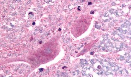 SCN3A Antibody (PA5-34188) in Immunohistochemistry (Paraffin)