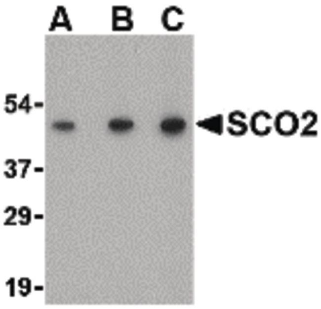 SCO2 Antibody (PA5-20339) in Western Blot