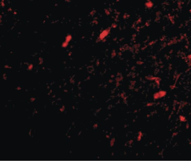 FBXL20 Antibody (PA5-20486)