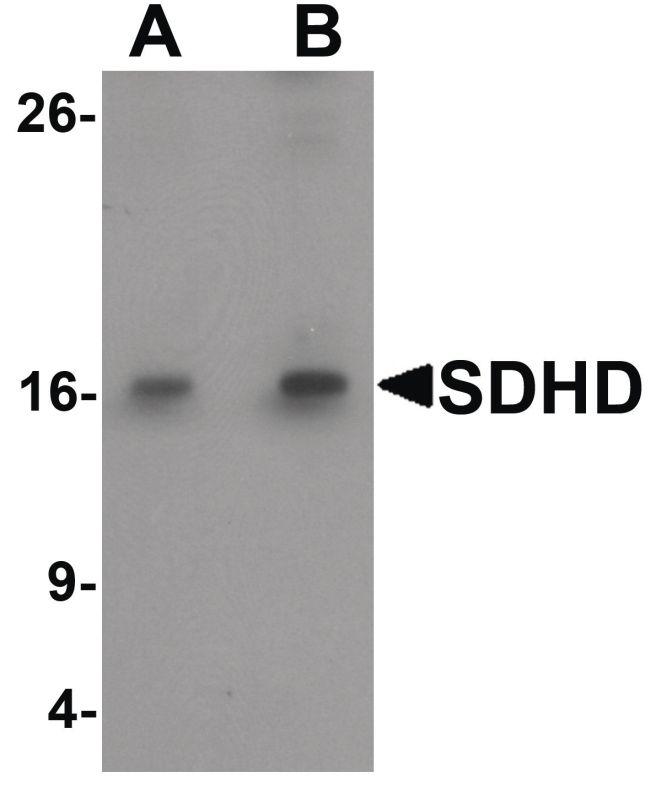 SDHD Antibody (PA5-34387) in Western Blot