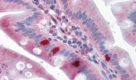 SEMA4B Antibody (PA5-34192) in Immunohistochemistry (Paraffin)