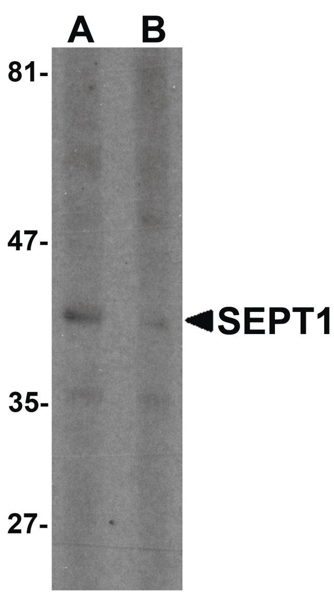 Septin 1 Antibody (PA5-34399) in Western Blot