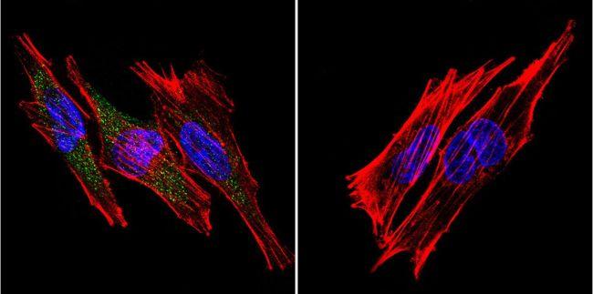SERCA1 ATPase Antibody (MA3-912) in Immunofluorescence
