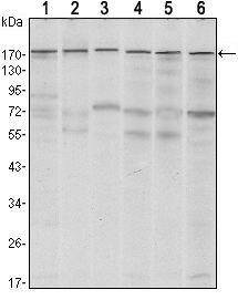 SETDB1 Antibody (MA5-15721) in Western Blot