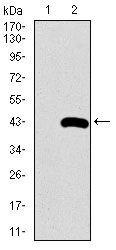 SFTPC Antibody (MA5-17172)