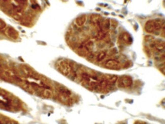 SGK1 Antibody (PA5-21147) in Immunohistochemistry