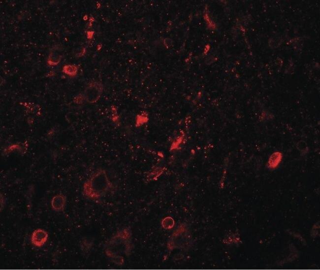 SGSM1 Antibody (PA5-34438) in Immunofluorescence