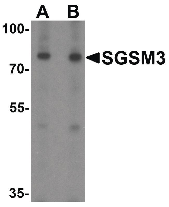 SGSM3 Antibody (PA5-34451) in Western Blot