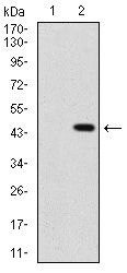 SHH Antibody (MA5-17173) in Western Blot