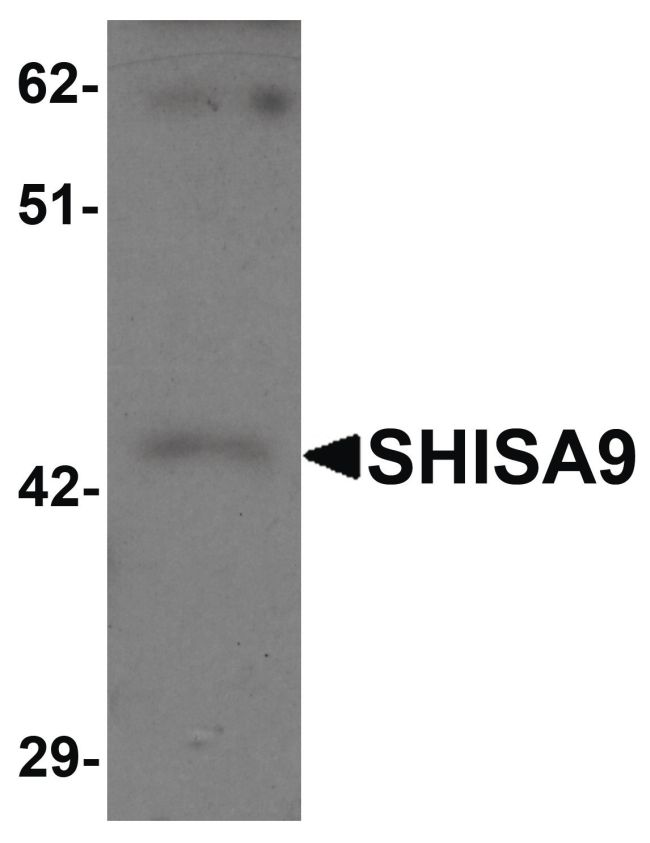 SHISA9 Antibody (PA5-21058) in Western Blot