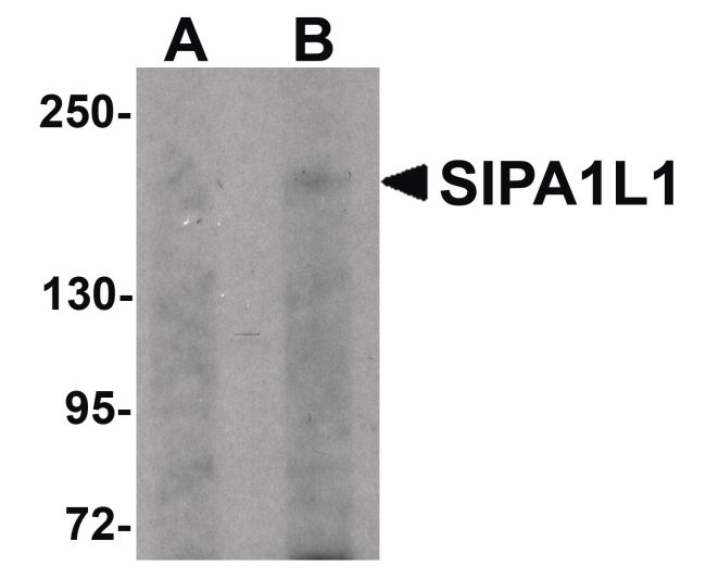 SIPA1L1 Antibody (PA5-20847) in Western Blot
