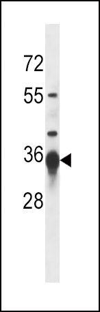 SIRT3 Antibody (PA5-13222) in Western Blot