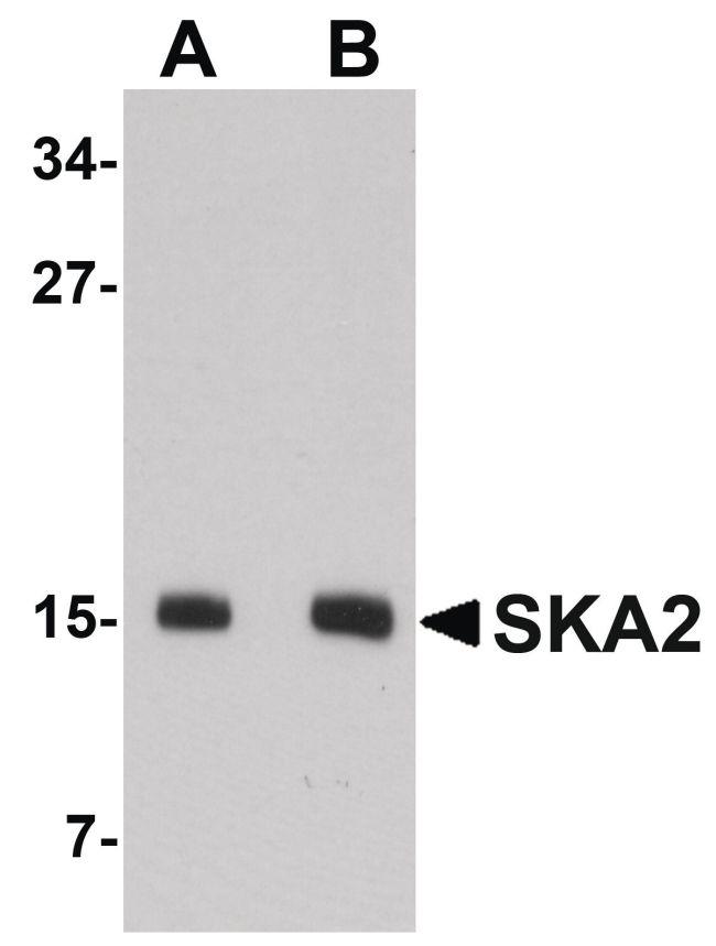 SKA2 Antibody (PA5-20818) in Western Blot
