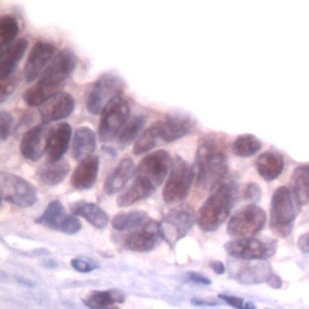 SKP1 Antibody (PA5-32584) in Immunohistochemistry