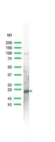 SKP1 Antibody (PA5-32584) in Western Blot
