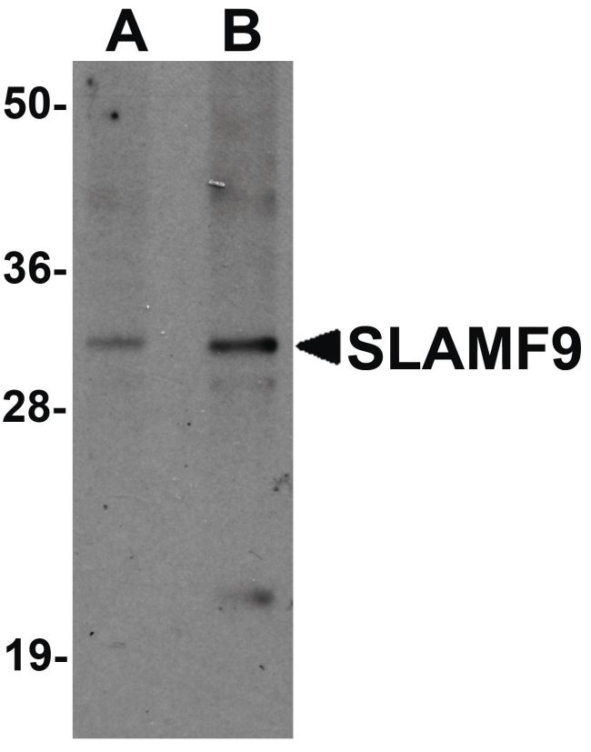 SLAMF9 Antibody (PA5-21103) in Western Blot