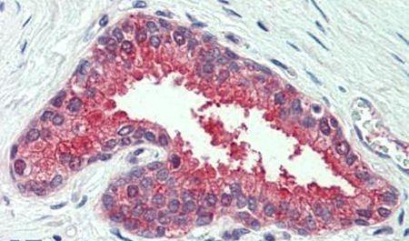 NKCC1 Antibody (PA5-33023) in Immunohistochemistry (Paraffin)